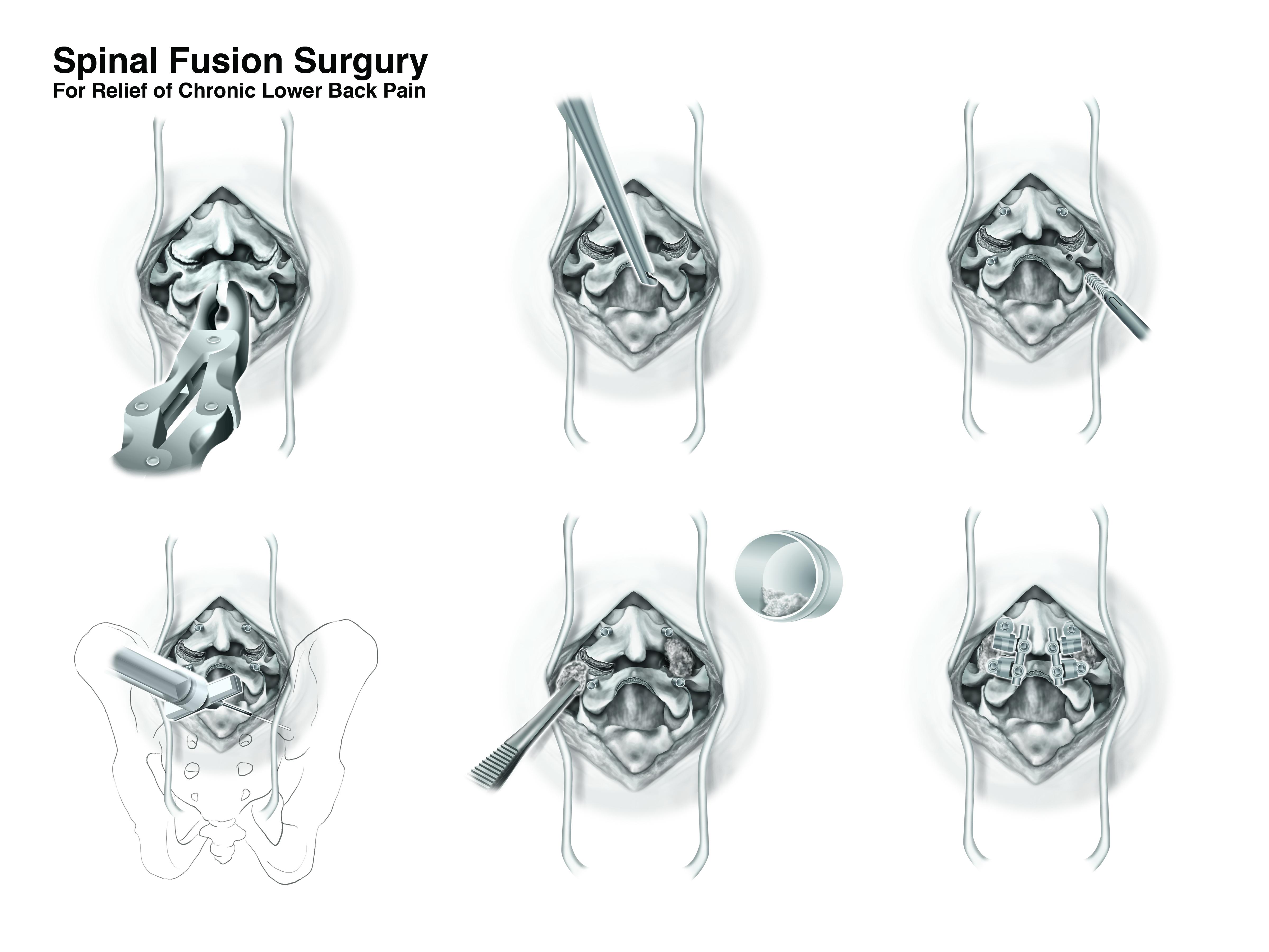 Lumbar Fusion Surgery Final Layout 2