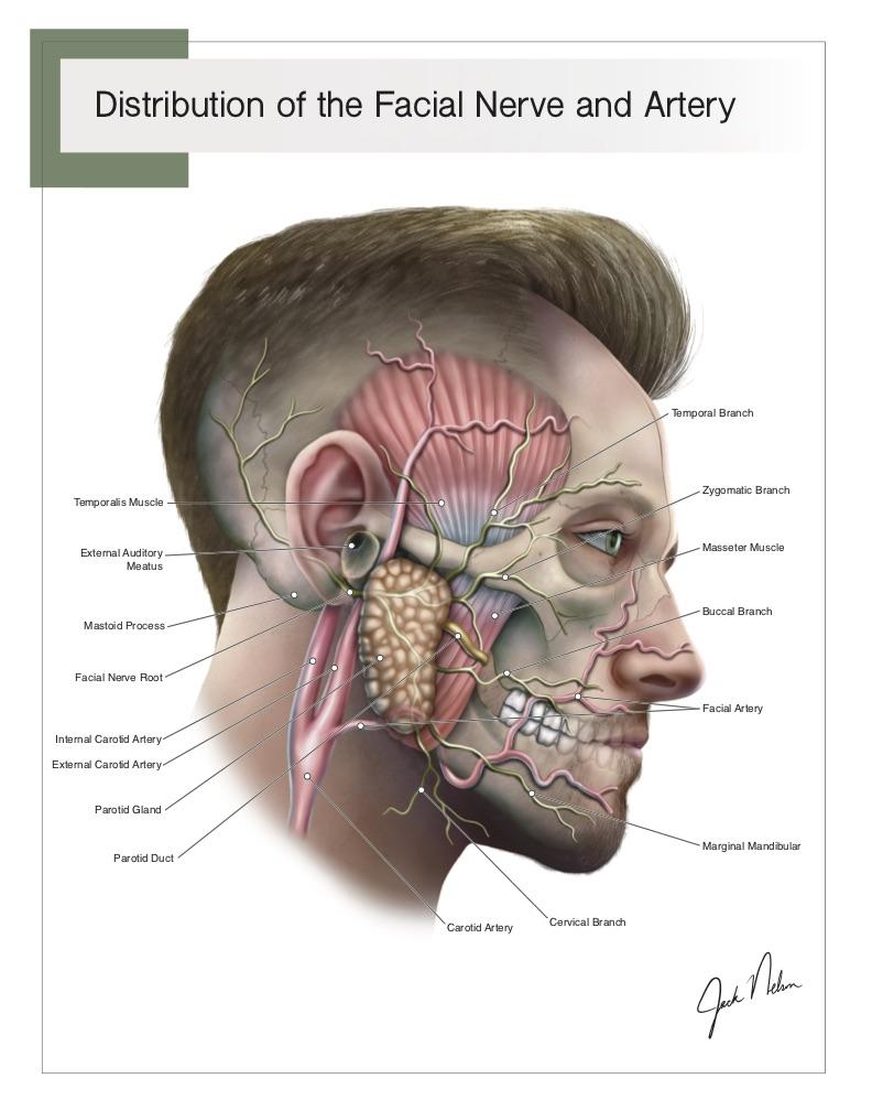 facial nerve 72